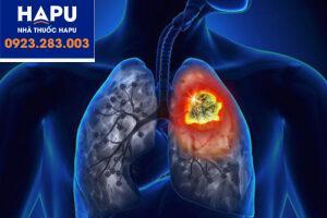 Ung thư phổi không tế bào nhỏ